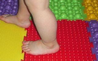 Как выявить плоскостопие у детей?