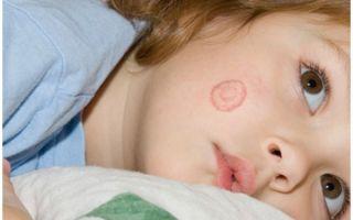 Как вылечить лишай на голове у ребенка?