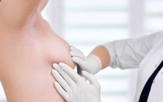Из-за чего появляются выделения из грудной железы?