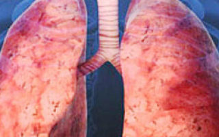 Как проходит лечение саркоидоза легких?