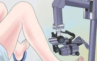 Удаление железисто-фиброзного полипа
