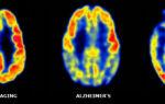 Лобно — височная деменция или Болезнь Пика