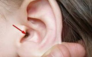 Как избавиться от шелушения в ушах?