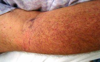 Эффективное лечение тромбоцитопении