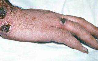 Какие способы лечения карбункула?