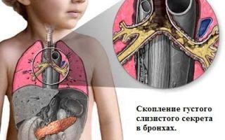 Какие способы лечения синегнойной палочки?