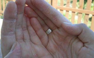 Возможно ли лечение экземы на руках?