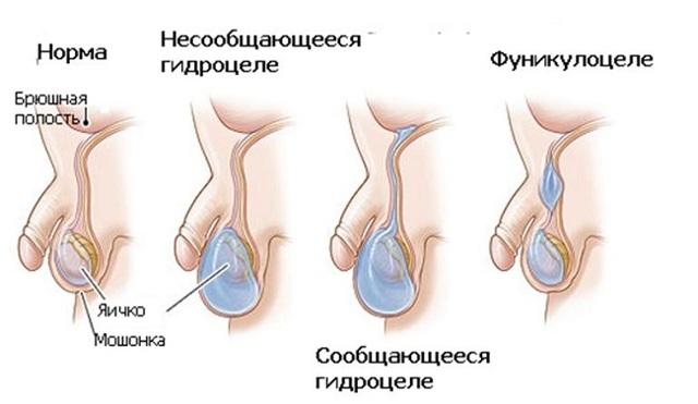 Водянка яичка у мужчин: причины и лечение. Чем лечить гидроцеле