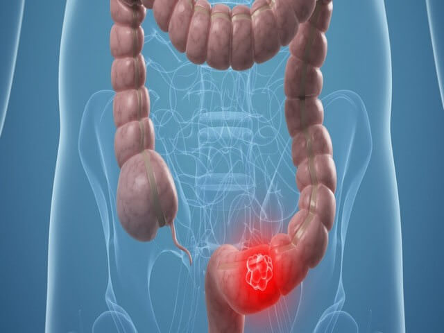 Сигмовидная кишка. Где находится и как болит, симптомы воспаления, заболевания, дивертикулярная болезнь, лечение и операция по удалению