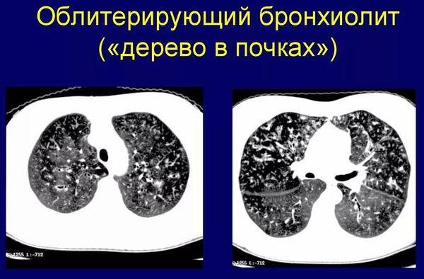 Бронхиолит, что это такое? Симптомы у взрослых и лечение бронхиолита