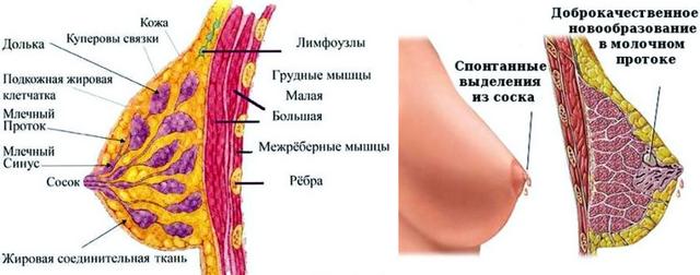 выделения из грудных желез при надавливании - причины, диагностика и лечение
