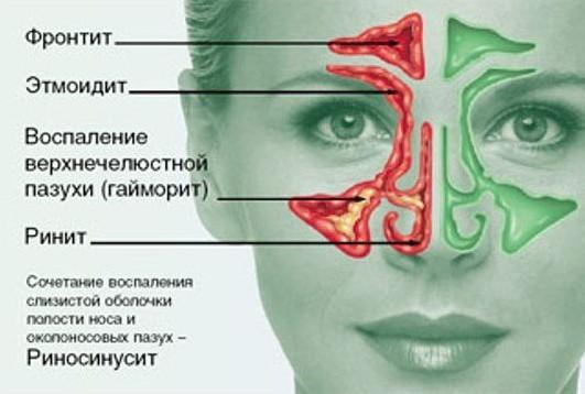 Риносинусит, что это? Симптомы и лечение у взрослых в домашних условиях