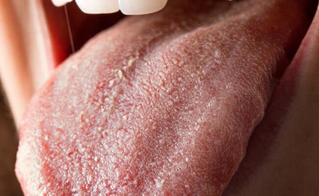 Кандидоз полости рта: симптомы, фото, лечение, последствия