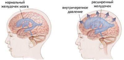 Почему тошнит, кружится голова и слабость: что делать и как лечить?