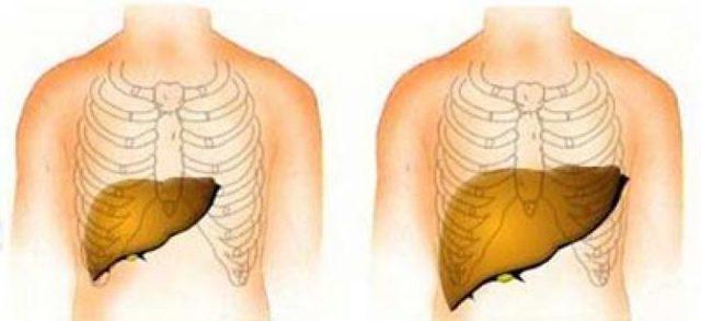 Гепатомегалия - что это такое и как лечить увеличенную печень?