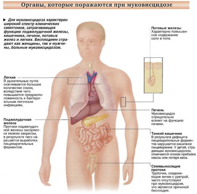 Муковисцидоз: что это за болезнь, симптомы у взрослых и причины