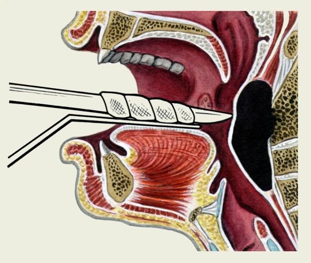 Заглоточный абсцесс: фото, симптомы и лечение у взрослых и детей