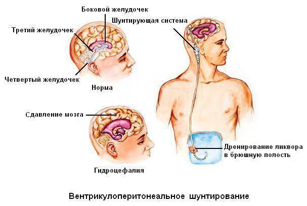 Гидроцефалия головного мозга у детей: лечение, фото, последствия