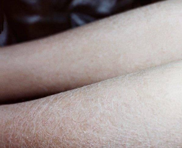 Сухая кожа на ногах. Причины зуда, трещин, шелушения, сухости у взрослых. Лечение и уход за ногами в домашних условиях