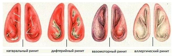 Ринит - что это такое? Симптомы и лечение ринита у взрослых