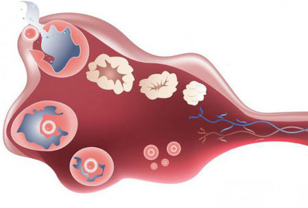 Антимюллеров гормон. Норма у женщин по возрасту. Таблица на 2, 3, 4, 5, 6 день цикла, для ЭКО, зачатия. Что делать, если понижен, выше нормы