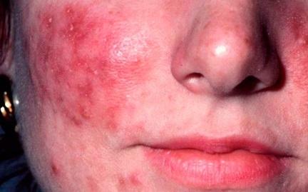 Как лечить розацеа на лице: фото симптомы и лечение у взрослых