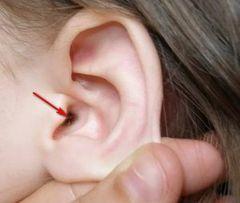 Сухие корочки в ушах у человека, шелушение и сухость