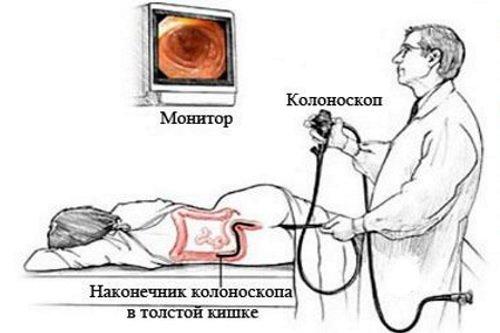 Туберкулез кишечника: первые симптомы, лечение у взрослых, сколько с ним живут