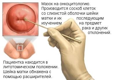 Гистология. Что это такое в гинекологии, расшифровка результатов, таблица норм у взрослых, как проводится исследование, анализ