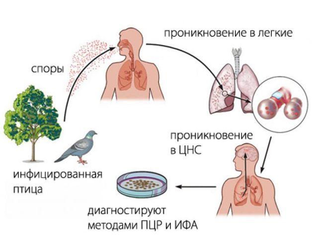 Все про орнитоз у человека: симптомы, лечение, осложнения, прогноз