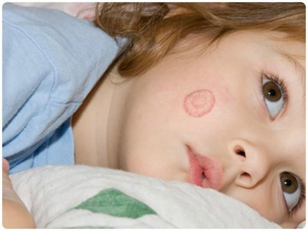 Лишай на голове у ребенка фото лечение