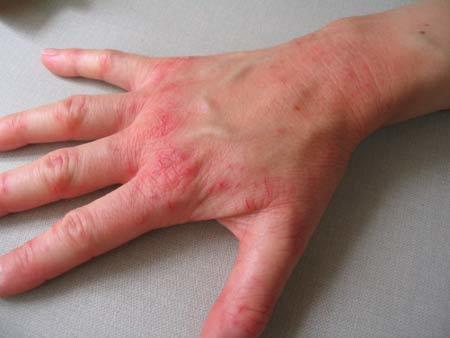 Нейродермит: симптомы, фото, лечение, причины возникновения