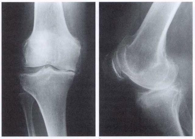 Остеоартроз коленного сустава 1, 2 и 3 степени: лечение, симптомы, что это такое?