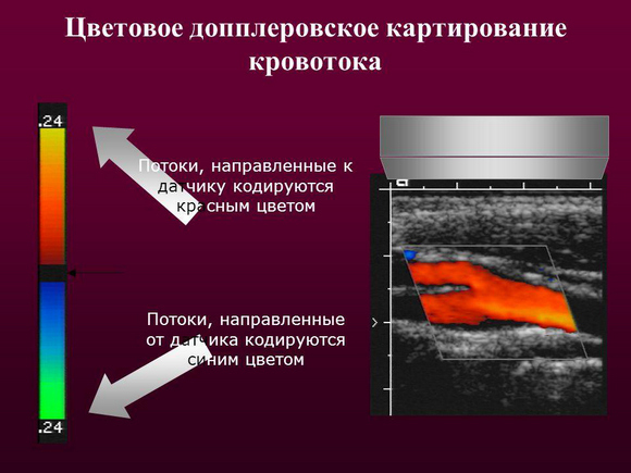 Дуплексное сканирование сосудов головы и шеи, головного мозга. Что это такое, что показывает, как делается транскраниальное, ультразвуковое, цветное. Стоимость, и где сделать