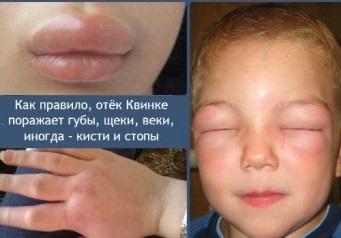 Как выглядит Отек Квинке: фото, симптомы и лечение в домашних условиях