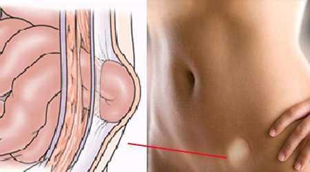 Паховая грыжа у женщин: фото, симптомы, чем опасна, лечение без операции, народными средствами, бандаж. Операция по удалению, как делается, последствия