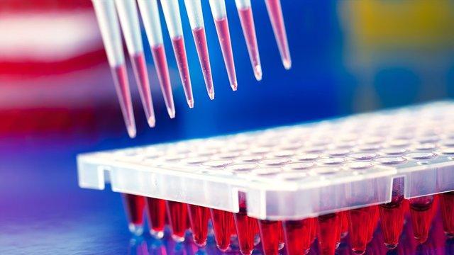 Кровь на стерильность. Что это такое, правила забора, Инвитро, Гемотест, где можно сдать кровь взрослому, ребенку, новорожденному, что показывает анализ, расшифровка результатов