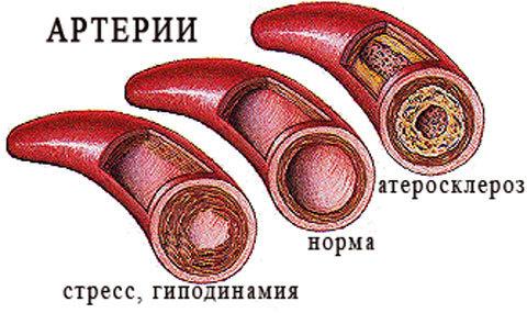 pct в анализе крови. Что это такое, расшифровка, норма у женщин, мужчин, детей. Что значит повышен, понижен показатель