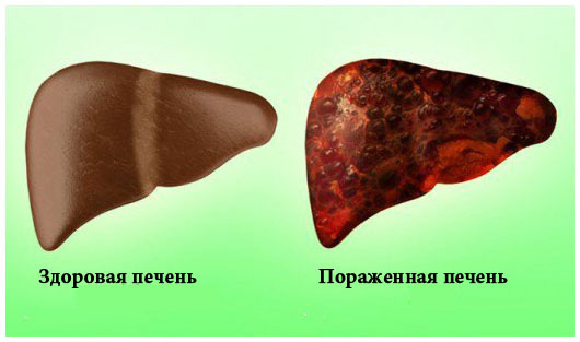 Токсический гепатит печени: симптомы и лечение, прогноз для жизни
