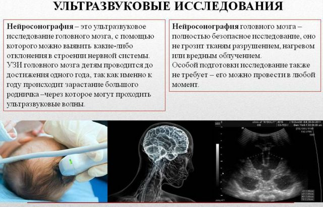 Нейросонография головного мозга новорожденных. Что это такое, нормы у грудничка, таблица, что показывает, до какого возраста делается, расшифровка