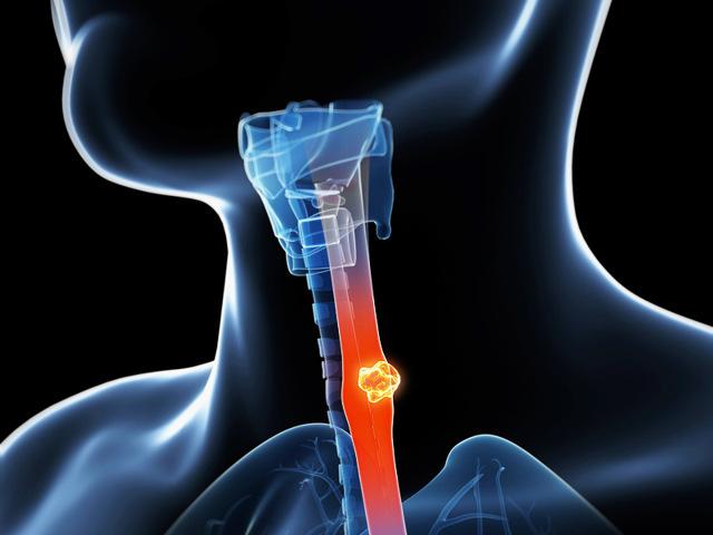 Рак пищевода: первые симптомы, сколько с ним живут?