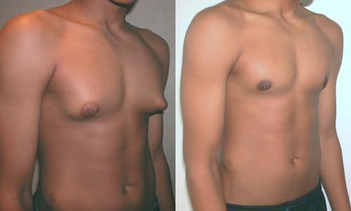 Как убрать гинекомастию без операции