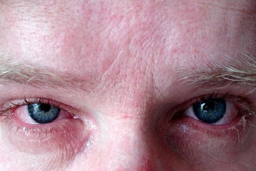 Симптомы венерологических заболеваний у мужчин. Фото на коже, во рту, ощущения и лечение. Признаки заболеваний и клинические рекомендации