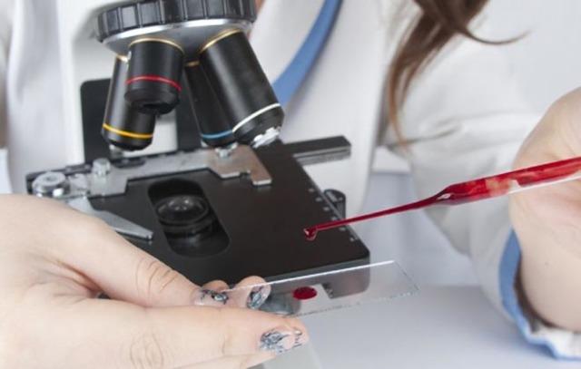 Нейтрофилы понижены у взрослого. О чем это говорит, причины лимфоциты завышены, понижены в анализе