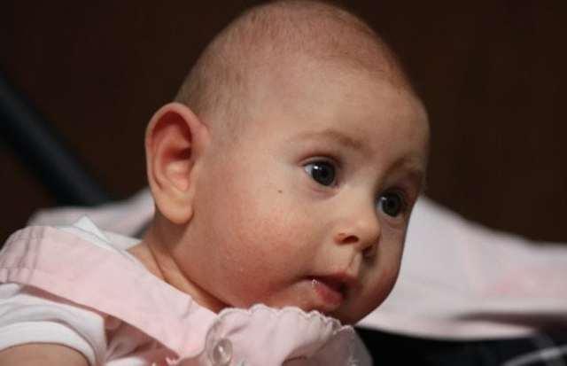 Синдром Патау: фото новорожденных, симптомы, лечение, что это такое