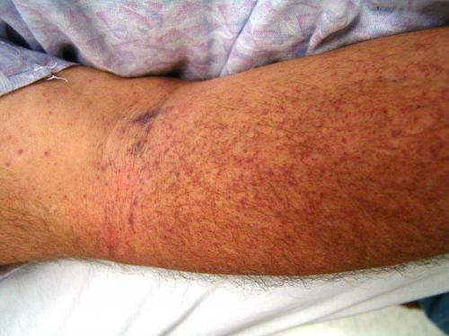 Тромбоцитопения, что это? Причины, симптомы и лечение у взрослых