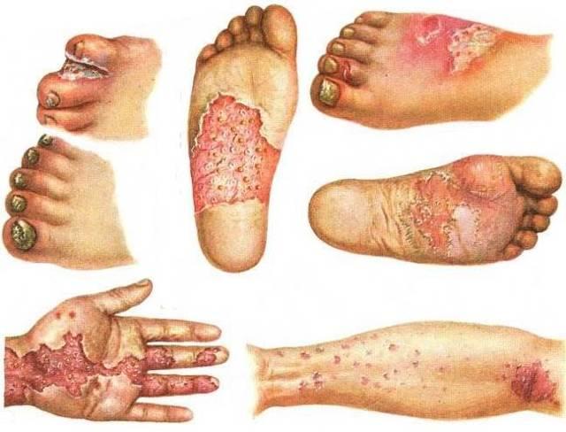 Дерматомикоз у человека: фото, симптомы и лечение в домашних условиях