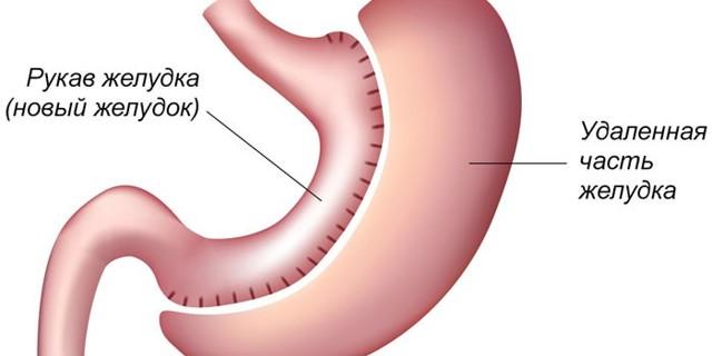 Резекция желудка для похудения. Цена, как проходит процедура, виды при ожирении, диета после, отзывы