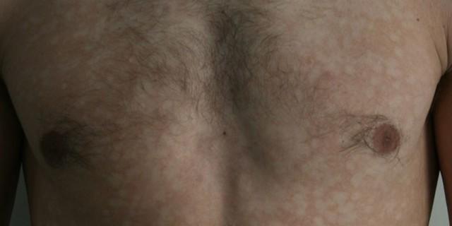 Чем лечить солнечный лишай у человека: симптомы, фото, лечение в домашних условиях