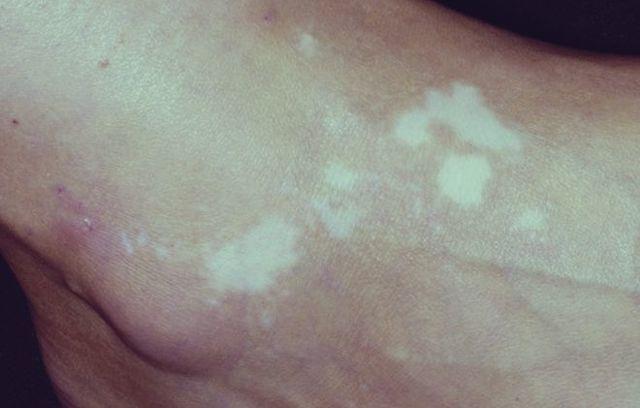 Витилиго, что это за болезнь? Причины возникновения и лечение витилиго